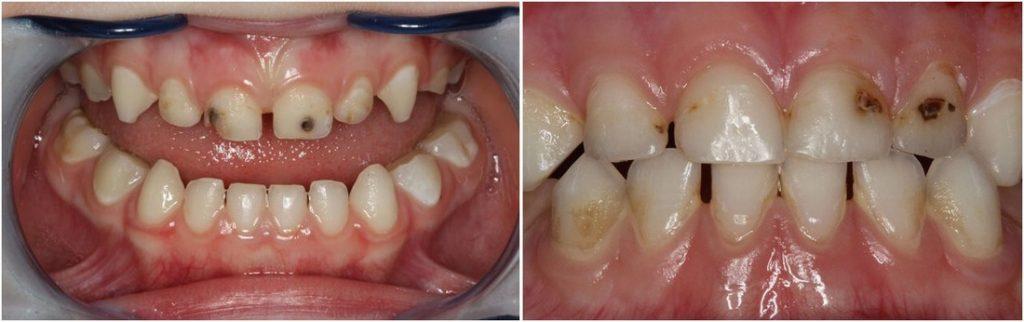 Кариес молочных зубов фото