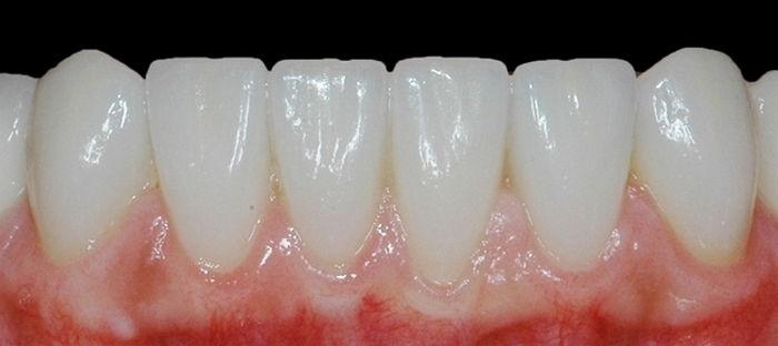 На нижние зубы
