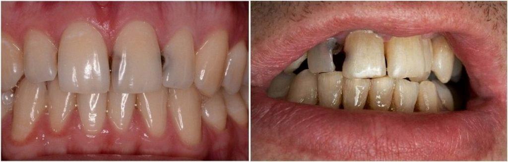 На передних зубах кариес фото