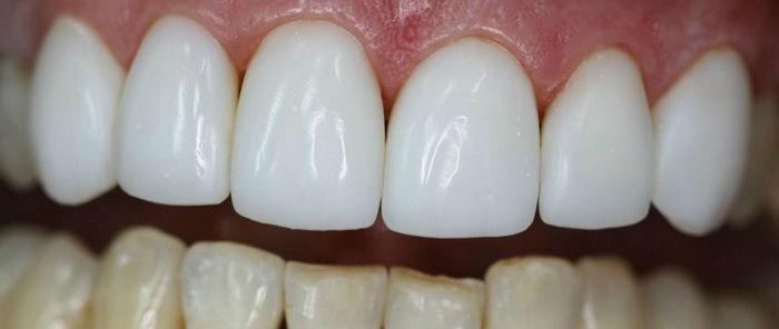 На верхние зубы
