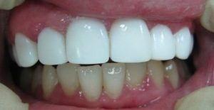 Отбеливание зубов винирами