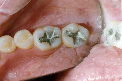 Пример лечения №11