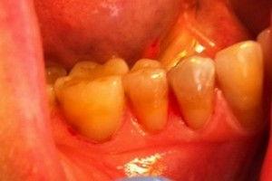Пример лечения кариеса №12
