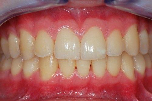 Пример лечения десен №13