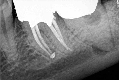 Пример лечения зубных каналов №11