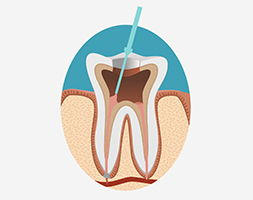 очистка зубных каналов