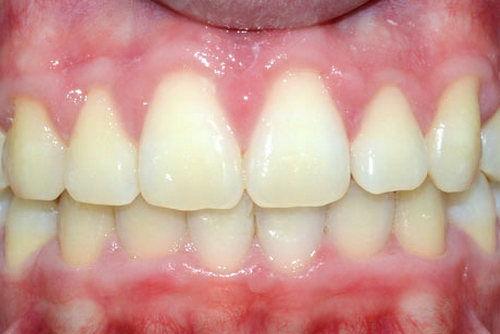 Пример лечения гингивита