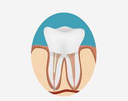 пломбировка зубных каналов
