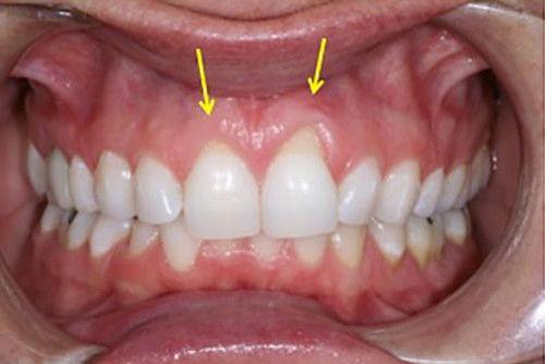 Пример лечения десен №9