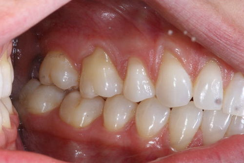 Пример лечения десен №8