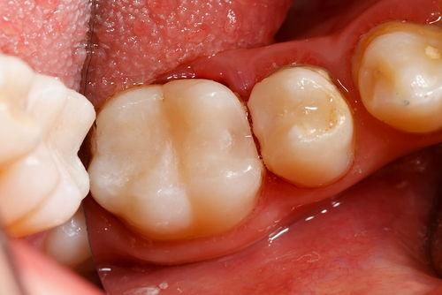 Пример лечения зубных каналов №9