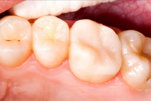 Пример лечения зубных каналов №8