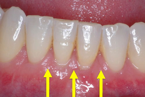 Пример лечения десен №7