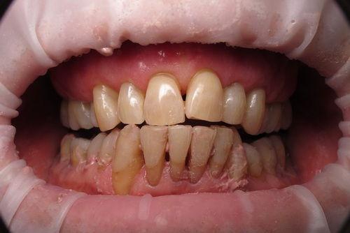 Пример лечения десен №6