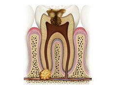Лечение кисты и гранулемы