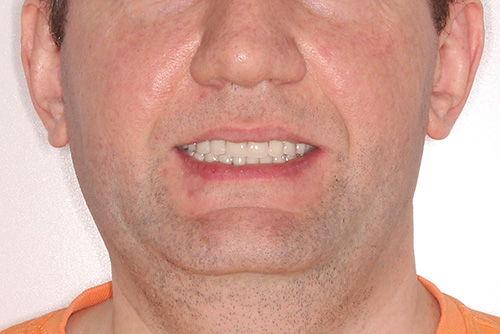 Пример имплантации зубов №14