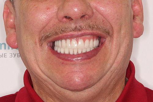 Пример имплантации зубов №23