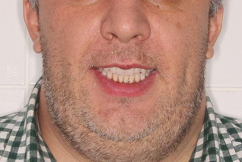 Пример имплантации зубов №22
