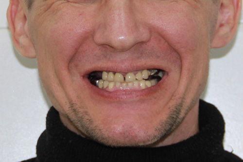 Пример имплантации зубов №6