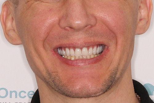 Пример имплантации зубов №21