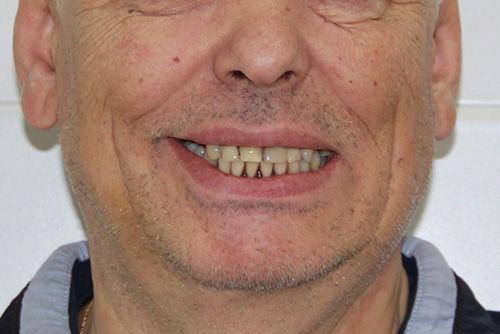 Пример имплантации зубов №20