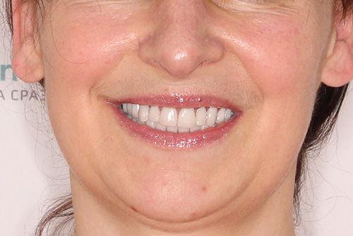 Пример имплантации зубов №19