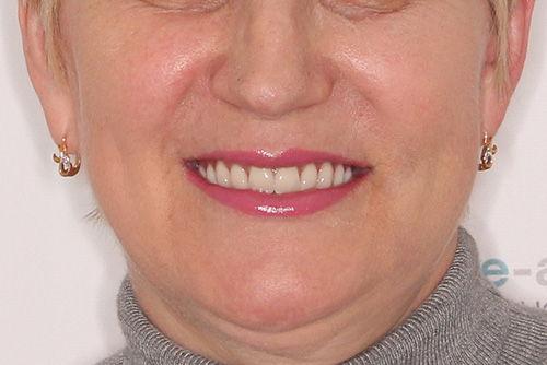 Пример имплантации зубов №18