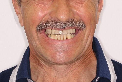 Пример имплантации зубов №17