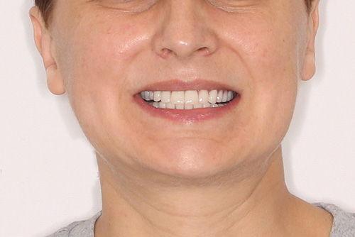 Пример имплантации зубов №1