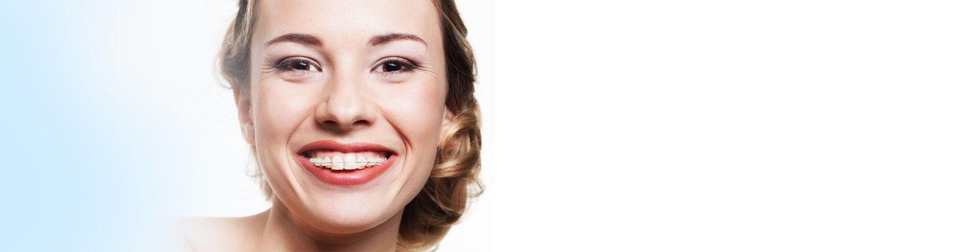 Сапфировая улыбка — самый популярный вид брекетов.