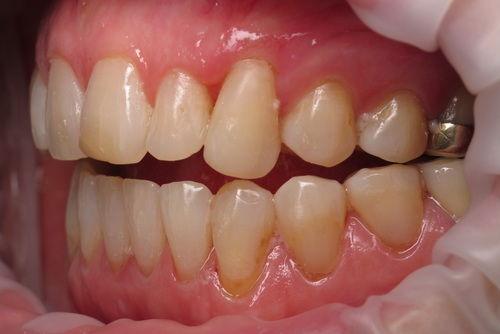 Пример лечения десен №5