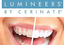 Люминир Cerinate — супертонкий вид винира из керамики