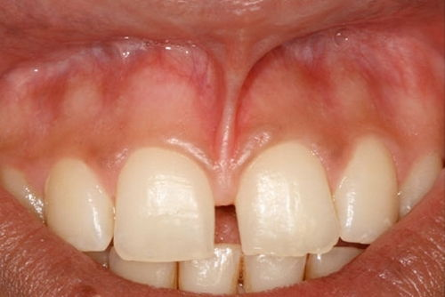 Подрезание уздечки губы