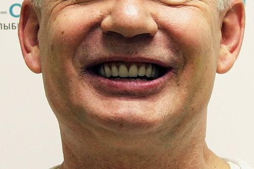 Пример протезирования зубов №11