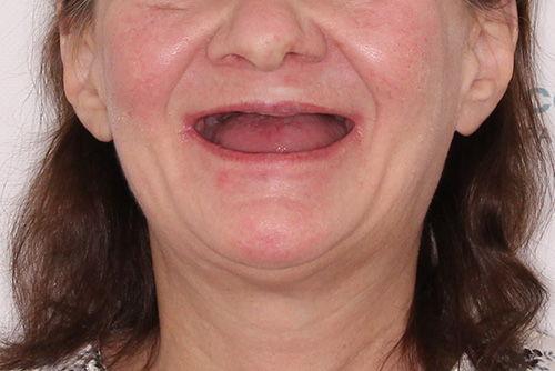 Пример протезирования зубов №12