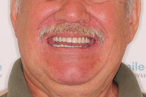 Пример протезирования зубов №13