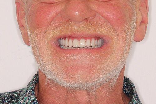 Пример протезирования зубов №14