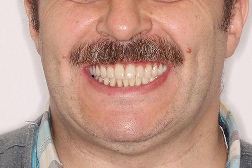Пример протезирования зубов №15