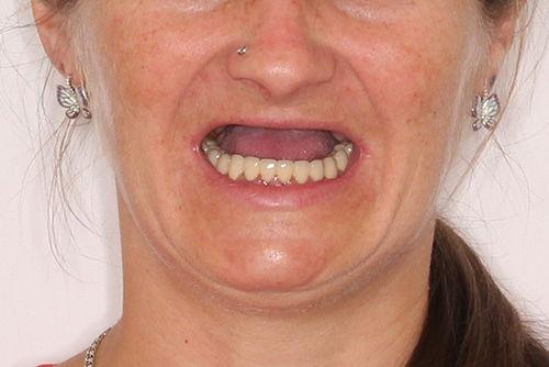 Пример протезирования зубов №16
