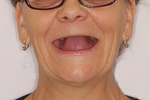 Пример протезирования зубов №17
