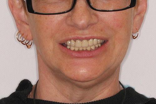 Пример протезирования зубов №18