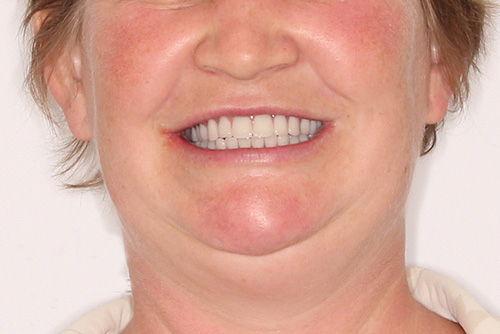 Пример протезирования зубов №19
