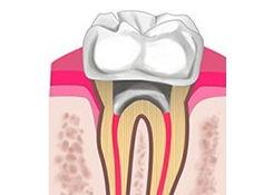 Зубная коронка из металлокерамики