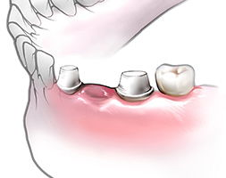 обточка и укрепление зубов