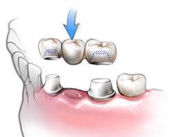изготовление зубного протеза