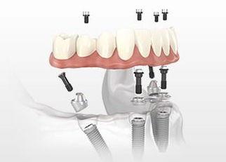 Комплекс All-on-4  (Osstem) — Новые зубы за 1 день