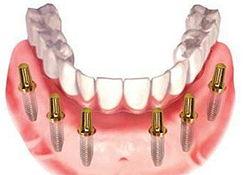 Комплекс All-on-6 (Osstem) — Новые зубы за 1 день