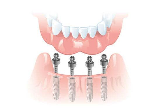 Полное восстановление зубов на 4 имплантах ALPHABIO