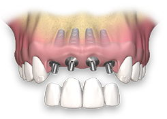 Восстановление сегмента (3 -4 зуба) импланты с коронками