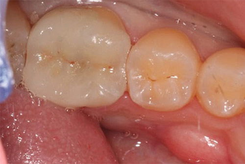 Установка зубных коронок №6